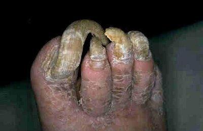Hood milf purple toenails