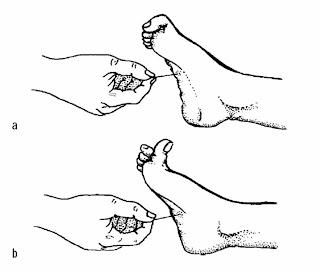 En la imagen superior observamos la respuesta normal; en la inferior, el reflejo de Babinski positivo.