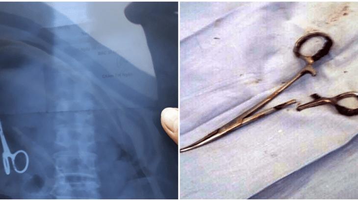 【医療ミス】18年間体内にハサミが!?事故の手術で医者が放置