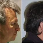 新発見!抗がん剤の副作用で髪の毛が若返る!もう白髪染めは必要なし