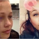 【閲覧注意】身体改造の悲劇…眼球タトゥーで失明寸前…そして深刻な鬱病に