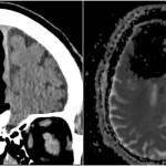 【人体の不思議実話】84歳「脳みそにブラックホール」発見!前頭葉消失の謎
