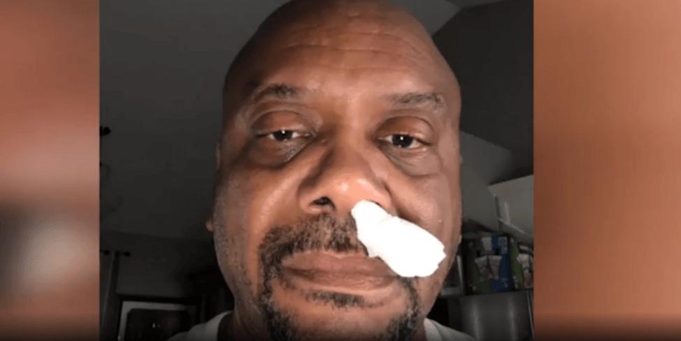鼻から脳髄液垂れてた男