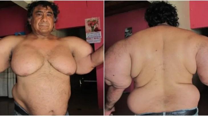 ダイビングの恐怖!重度の減圧症で体型が突然変異した漁師