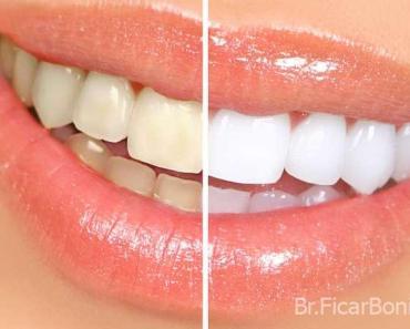 Truques caseiros para deixar os dentes mais brancos