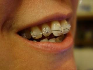 braces day1 (1)
