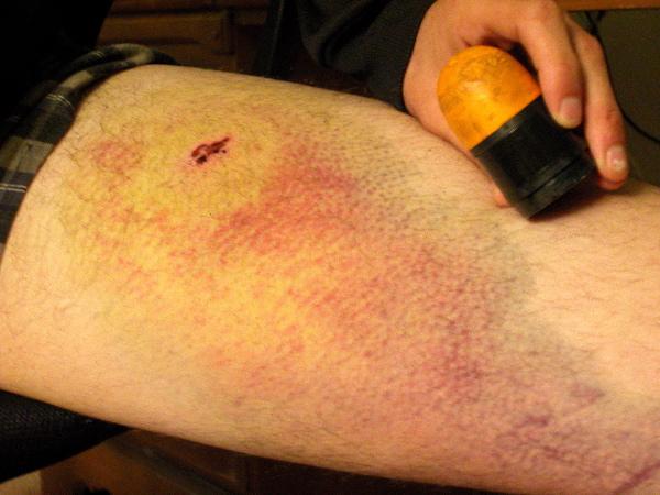 bruise_bullet_11-26-03