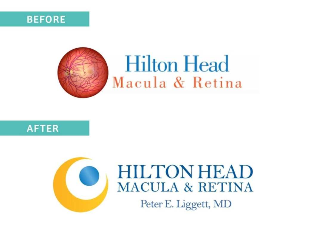 Hilton Head Macula Logo Before and After