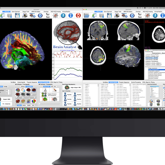 BrainAnalyst Combined Tumor Analysis