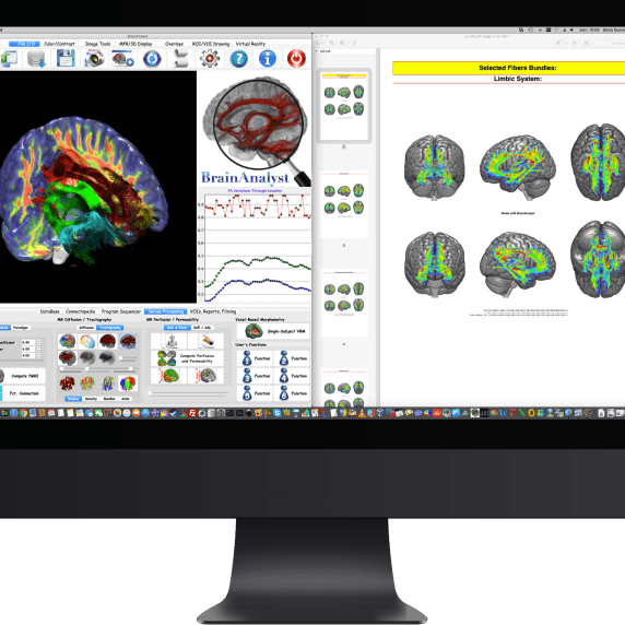 BrainAnalyst Structural Connectomic