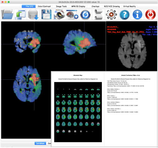 BrainAnalyst Stroke Analysis
