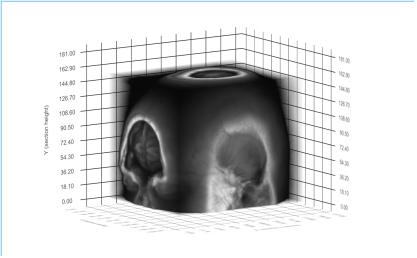 ICBM_template