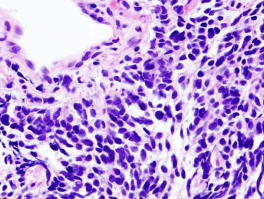 Histopathologic image of small cell carcinoma of the lung.