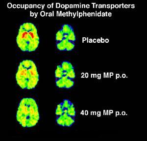 PET-SCAN mostrando a ocupancia dos recaptadores de dopamina. Azul indica ocupado e vermelho livre.