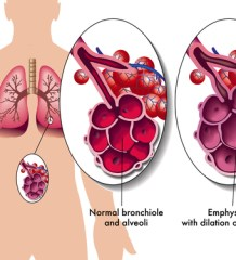 Growth Factor Can Improve Damaged Lungs