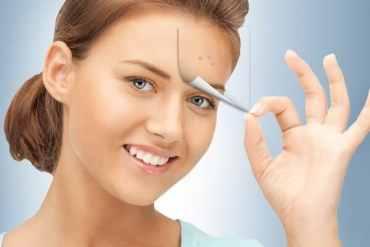 كريم لإزالة البقع السوداء من الوجه