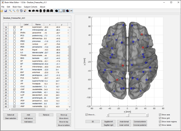 Figure 3: Brain regions can be selected by clicking on the corresponding checkbox or by right-clicking on the desired region on the brain surface. When selected, they appear red on the brain surface.
