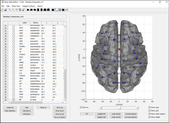 Figure 4: Adding a new brain region to a brain atlas.