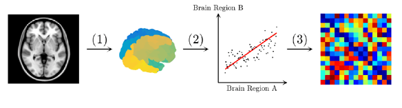 Figure 3: Flowchart exemplifying the building of the connectivity matrices in the brain for MRI structural data. (1) A T1-weighted MRI image is preprocessed to account for some artifacts and a meaningful variable is extracted for each brain region defined by the chosen parcellation scheme (e.g. cortical thickness, subcortical volume). (2) Correlation coefficients are calculated for each pair of brain regions in the brain across the subjects of a group. (3) The connectivity matrix is built such that the rows and the columns represent the brain regions and the entries are the correlation coefficients between each pair of brain regions.