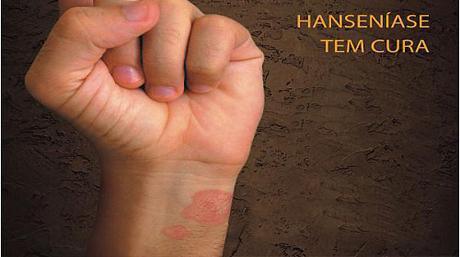 Sociedade Brasileira de Hansenologia divulga alerta sobre o cenário da hanseníase no Brasil
