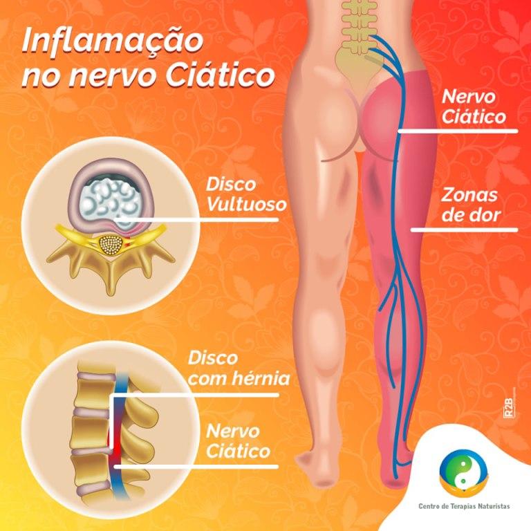 Tratamento para inflamação do nervo ciático
