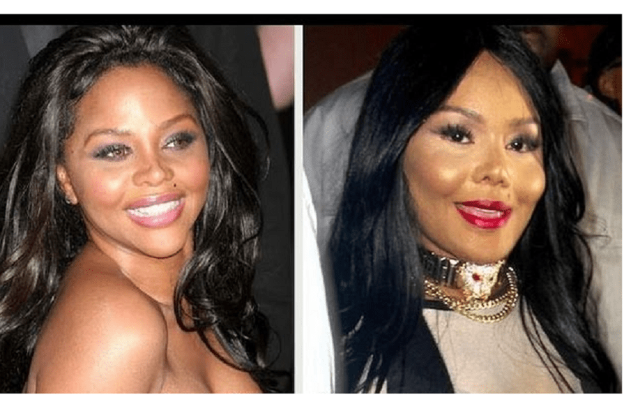 bad lil kim botox and lip implant plastic surgery