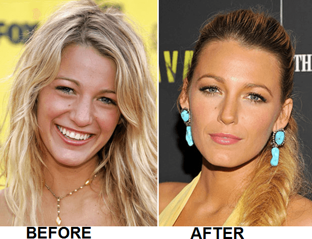 Blake Lively Nose Job Surgery