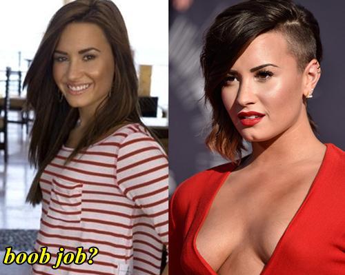 Demi Lovato Breast Implant