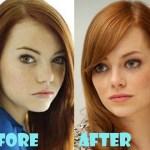 Emma Stone Nose Job Surgery