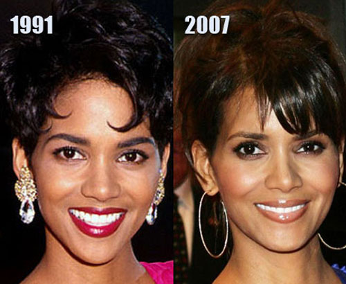 Halle Berry Plastic Surgery