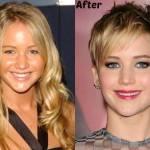 Jennifer Lawrence Nose Job Speculation