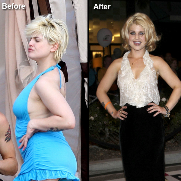 Kelly Osbourne Liposuction