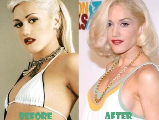 Gwen Stefani Boob Job