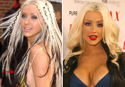 Christina Aguilera Boob Job Surgery