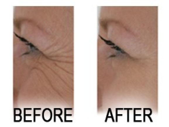 Useful Wrinkle Filler Information
