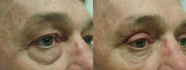 Treatment After Blepharoplasty