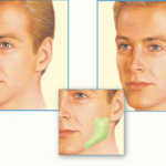 Jawline Oral Surgery