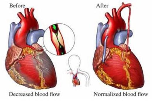 Heart Surgery Risk