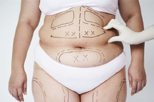 Liposuction Surgery Benefit
