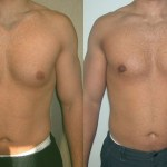 Another Natural Ways Male Breast Reduction Exercise