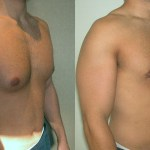 How Much Male Breast Reduction Cost