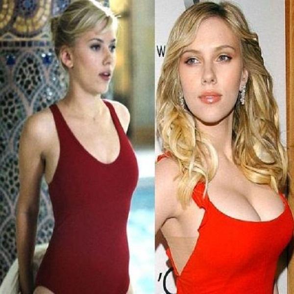 Scarlett Johansson Breasts Before After Boob Job