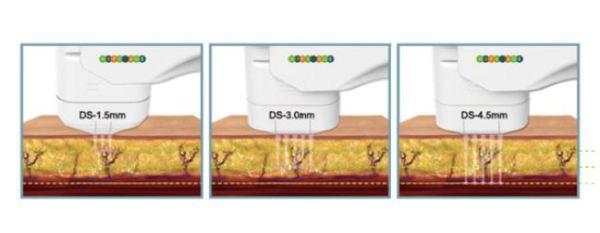 ハイブリッドフォーカス FACIAL & BODY ハイフォーカス HIFU 高密度 焦点式超音波