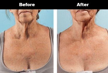 Cleavage Wrinkles Before After Bravity 5 2