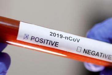 Teste de coronavírus da Rutgers pode testar 10 mil pessoas por dia