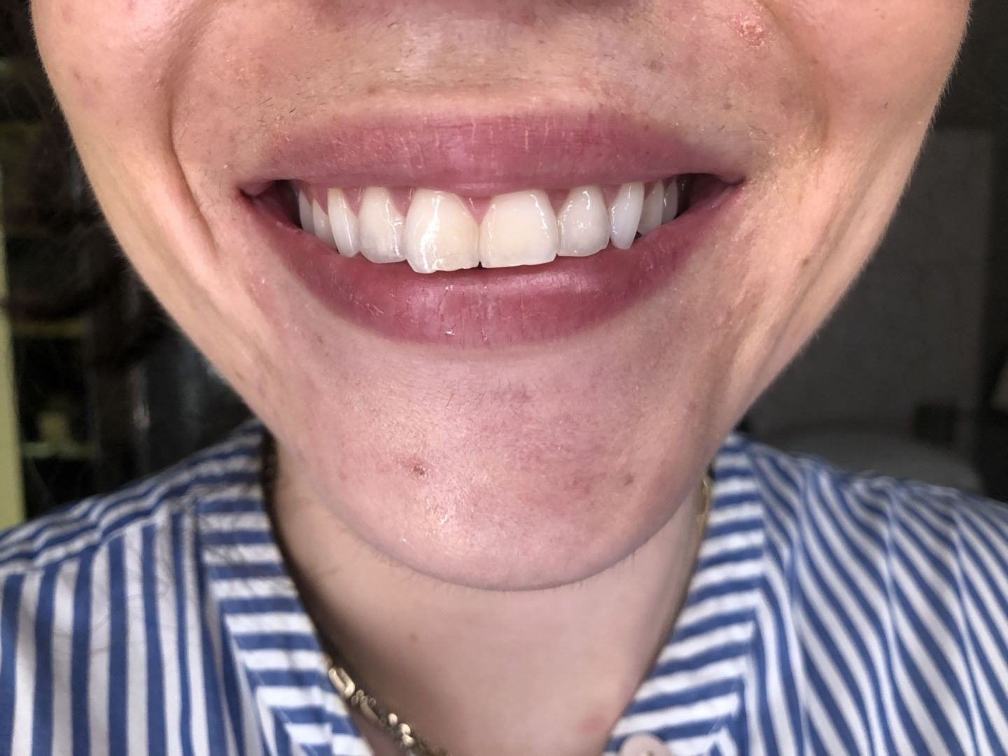 Teeth Whitening At Home Pearl Drops Vs Spotlight Review Beauty