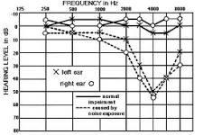 Audiogram of Hearing (5/6)
