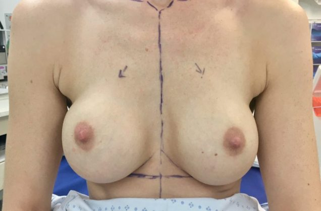 breast aug_)Before