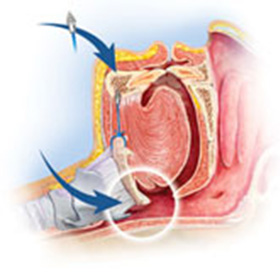 Hyoid and Tongue Advancement | Pasha Snoring & Sinus Center