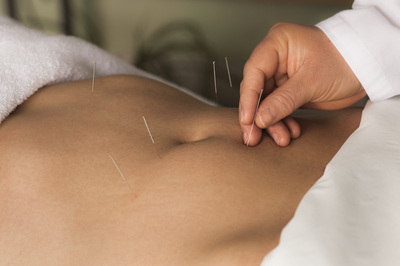 acupuncture 1